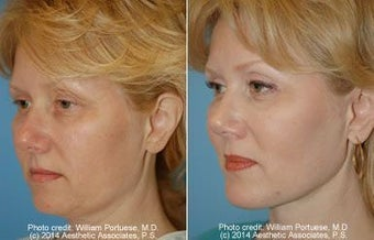 Neck Lift and Chin Implant before 91924