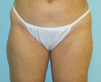 45-54 year old woman treated with Liposculpture after 2226878
