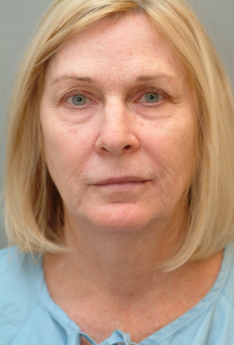 55-64 year old woman treated with Lip Lift