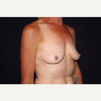 55-64 year old woman treated with Breast Implant Removal after 3741913