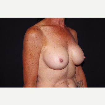 55-64 year old woman treated with Breast Implant Removal before 3741913