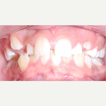 17 or under year old woman treated with Braces before 2244697