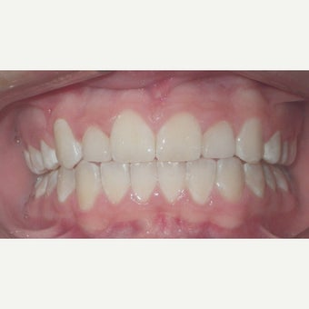 17 or under year old woman treated with Braces after 2244697
