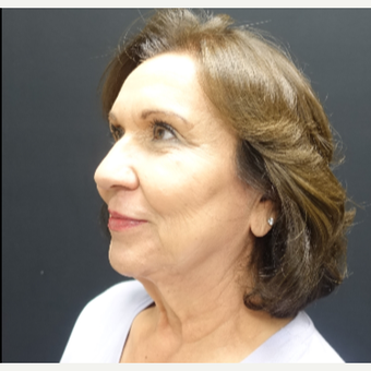 65-74 year old woman treated with Lower Face Lift before 3244881