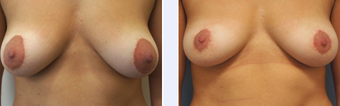 26 Year Old Female Areola Reduction Patient before 1346603