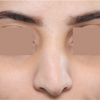 25-34 year old woman treated with Rhinoplasty before 3565682