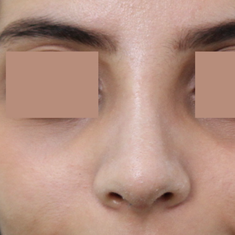 25-34 year old woman treated with Rhinoplasty after 3565682