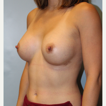 25-34 year old woman treated with Breast Augmentation after 3570421
