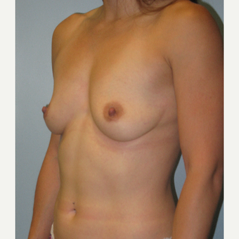 25-34 year old woman treated with Breast Augmentation before 3570421