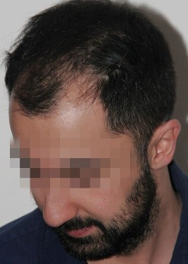 33 year old man treated with FUE Hair Transplant-13 days post op. 2832836