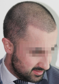 33 year old man treated with FUE Hair Transplant-13 days post op. after 2832836