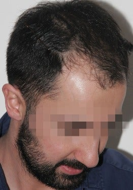 33 year old man treated with FUE Hair Transplant-13 days post op. before 2832836