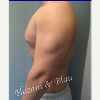 18-24 year old man treated with Male Breast Reduction before 3332924