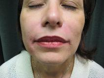 Juvederm for Nasolabial folds after 1499279