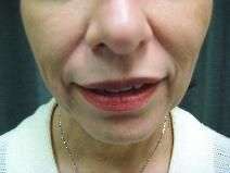 Juvederm for Nasolabial folds before 1499279