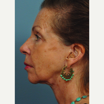 65-74 year old woman treated with Neck Lift after 3658437
