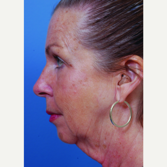 65-74 year old woman treated with Neck Lift before 3658437