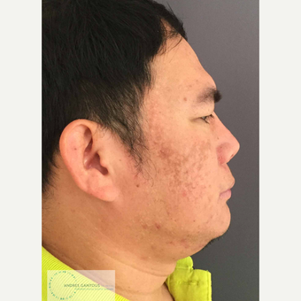 25-34 year old man treated with Rhinoplasty after 3692054