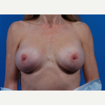 45-54 year old woman treated with Breast Implant Revision after 3444947