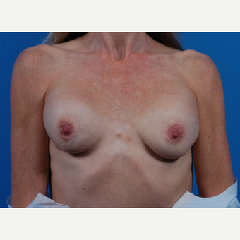 45-54 year old woman treated with Breast Implant Revision before 3444947