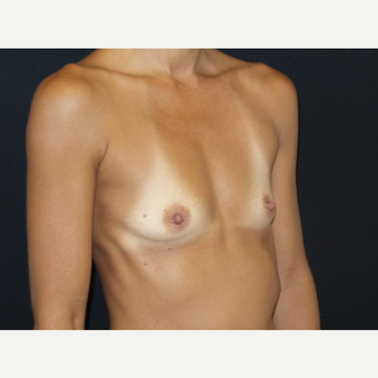 35-44 year old man treated with Breast Implants before 3651588