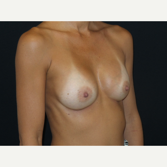 35-44 year old man treated with Breast Implants after 3651588