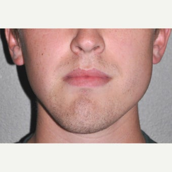 18-24 year old man treated with Facial Reconstructive Surgery