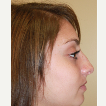 17 or under year old woman treated with Rhinoplasty before 3651243