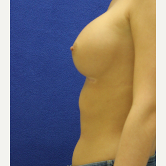 25-34 year old woman treated with Breast Augmentation after 3384449