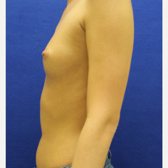 25-34 year old woman treated with Breast Augmentation before 3384449
