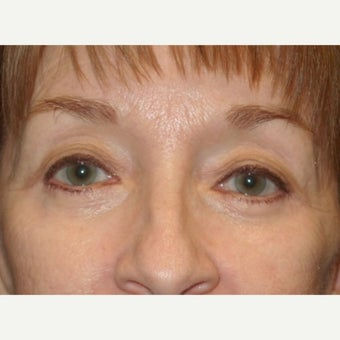 55-64 year old woman treated with Eye Bags Treatment after 2609084