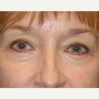 55-64 year old woman treated with Eye Bags Treatment before 2609084