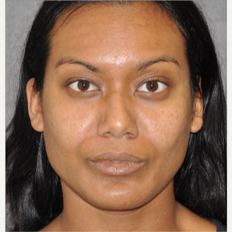 55-64 year old woman treated with Rhinoplasty before 3181705