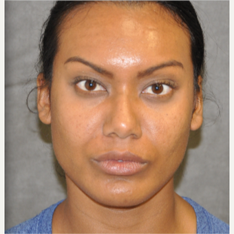 55-64 year old woman treated with Rhinoplasty after 3181705