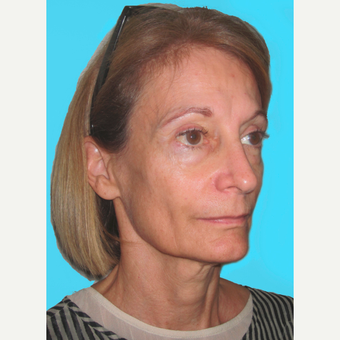 Facelift before 3826936