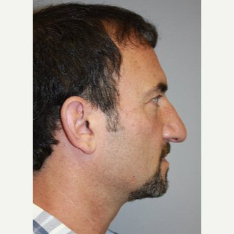 45-54 year old man treated with Rhinoplasty before 3339331