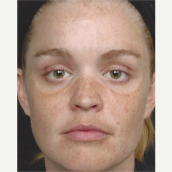 25-34 year old woman treated with Age Spots Treatment with Obagi Nu Derm Skin Transformation System before 2581711