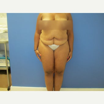 35-44 year old woman treated with Tummy Tuck 1566021