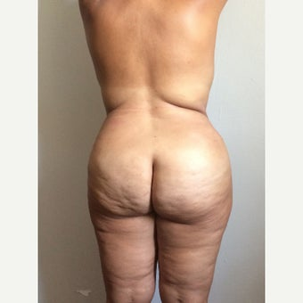 35-44 year old woman treated with Tummy Tuck after 1566021