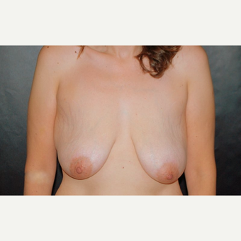 45-54 year old woman treated with Breast Lift before 3246220