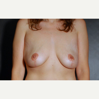 45-54 year old woman treated with Breast Lift after 3246220