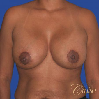 35 year old woman had a Donut Breast Lift after 3641044