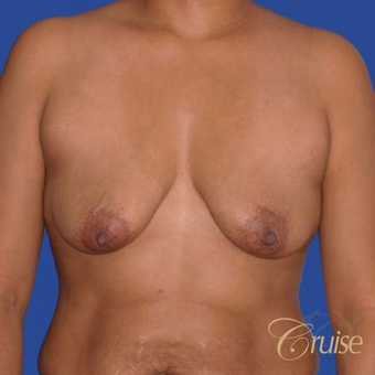 35 year old woman had a Donut Breast Lift before 3641044