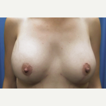 25-34 year old woman treated with Breast Augmentation after 3549184