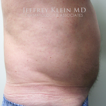 55-64 year old man treated with SculpSure before 2910335