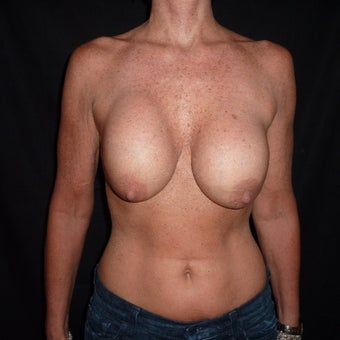 45-54 year old woman treated for Breast Implant Revision before 1528449