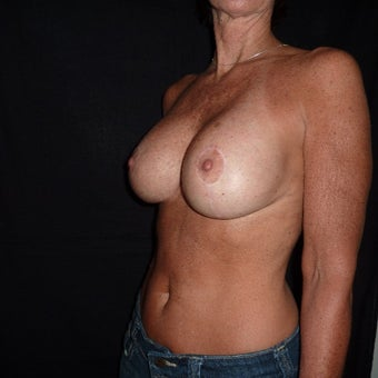 45-54 year old woman treated for Breast Implant Revision 1528449