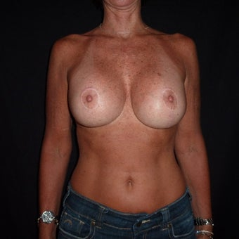 45-54 year old woman treated for Breast Implant Revision after 1528449
