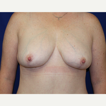 35-44 year old woman treated with Breast Reduction after 2715398