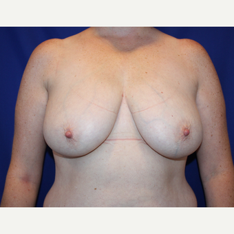 35-44 year old woman treated with Breast Reduction before 2715398